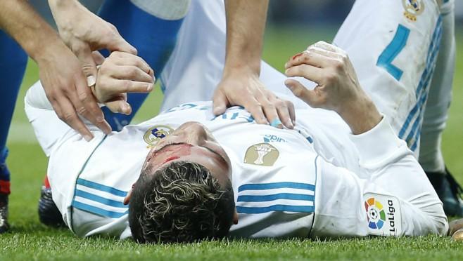 Kako izgleda lice Cristiana Ronalda posle stravične povrede?